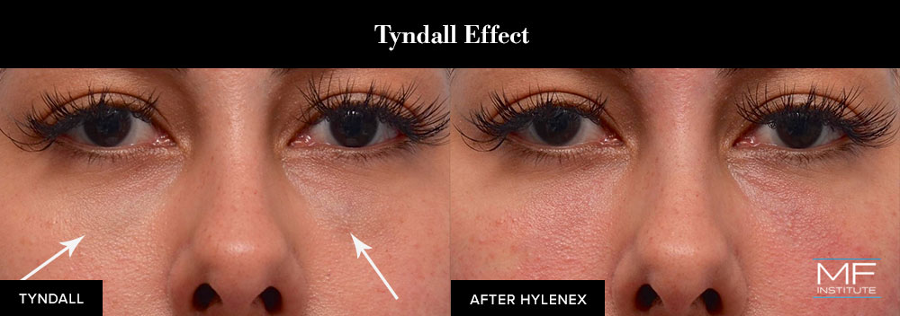 The Tyndall effect can be treated using Hylenex.