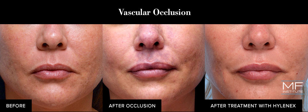 before, during, and after vascular occlusion from dermal filler injections.