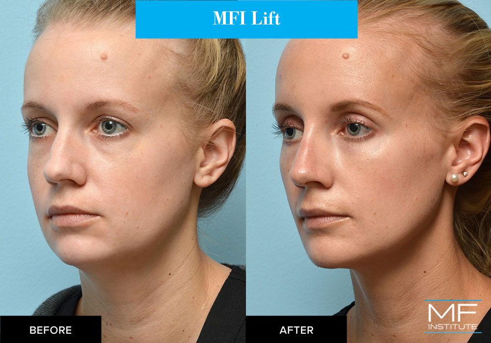 MFI lift (liquid facelift) with fillers before and after