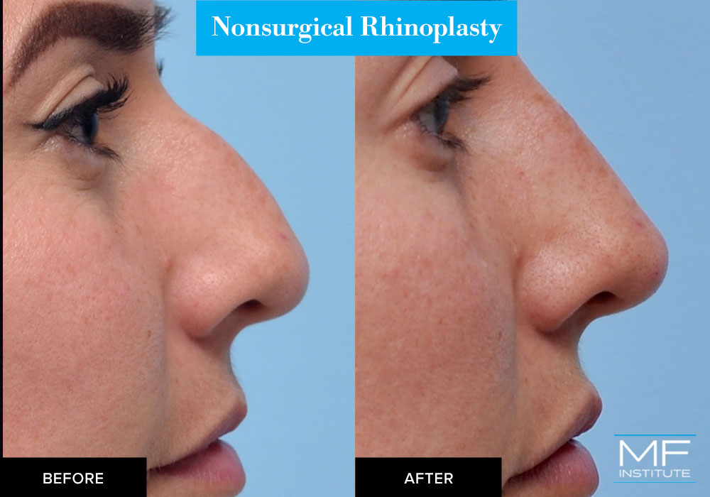 nonsurgical rhinoplasty with fillers before and after