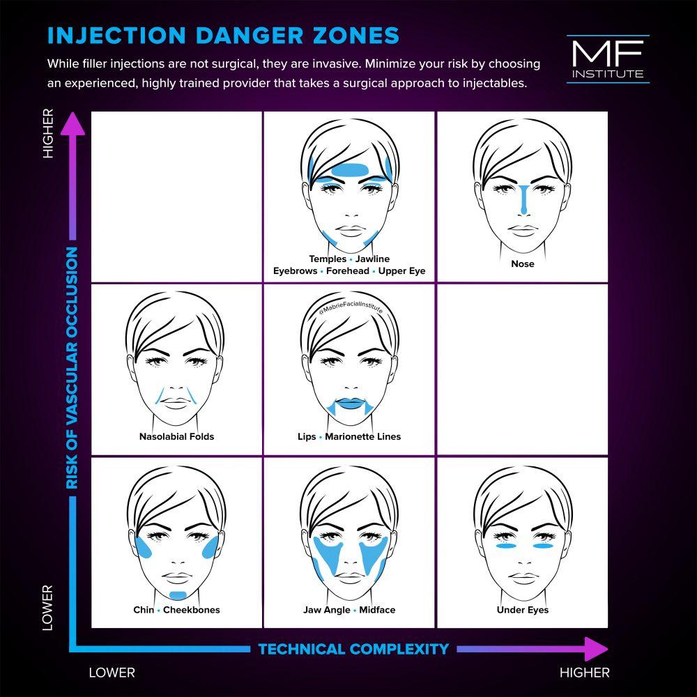 dermal filler injection danger zones diagram