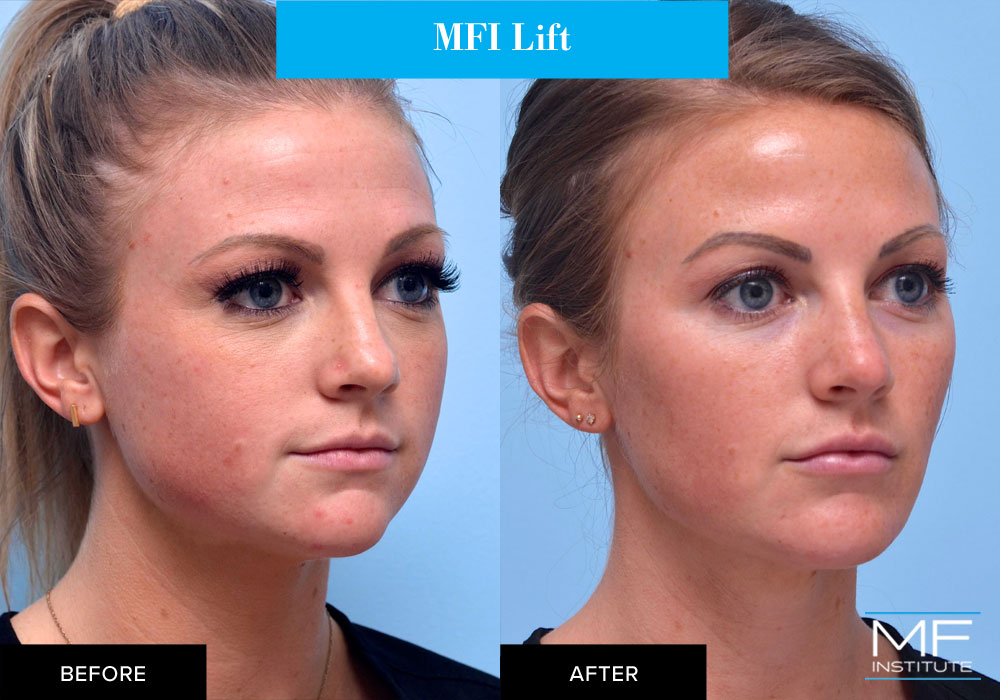 Full face contouring with fillers and BOTOX before and after