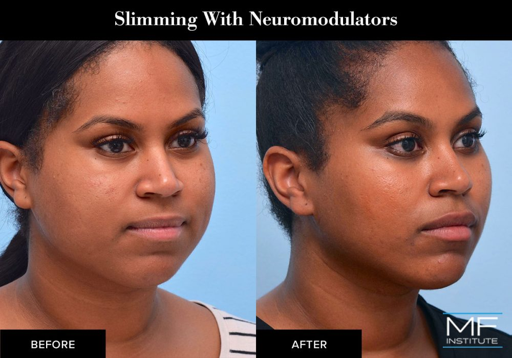 Facial slimming with neuromodulators such as BOTOX.