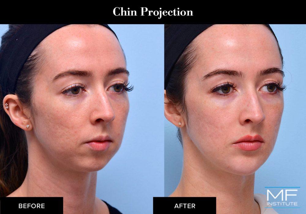 Chin dermal filler results
