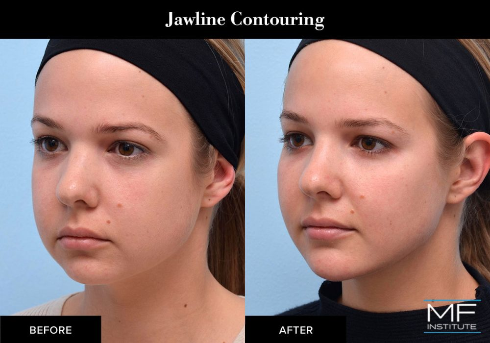Jawline contouring results created with dermal fillers.