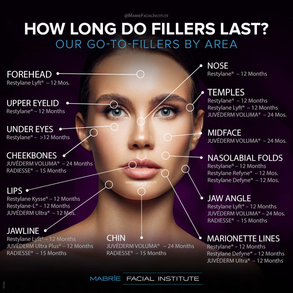 A diagram illustrating how long a specific filler procedure will last on a given treatment area