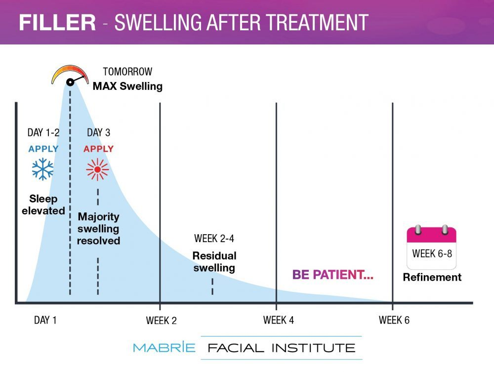 dermal filler recovery swelling graph