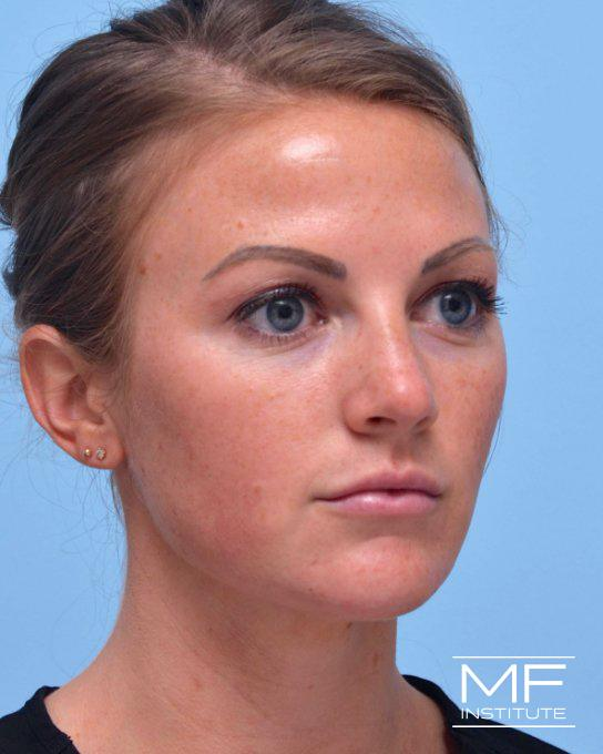 Cheek & Chin Contouring - After