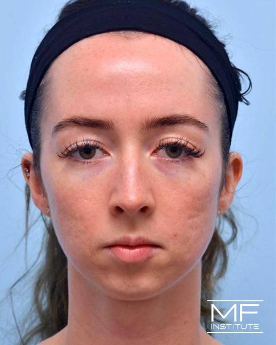 Jawline & Chin Contouring - Chin - Female - Before