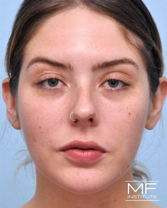 Jawline & Chin Contouring - Slimming Botox - Female - After