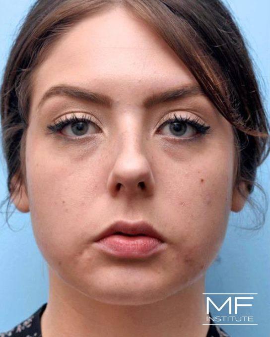Jawline & Chin Contouring - Slimming Botox - Female - Before