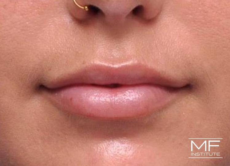 Lip Contouring - Proportion - After