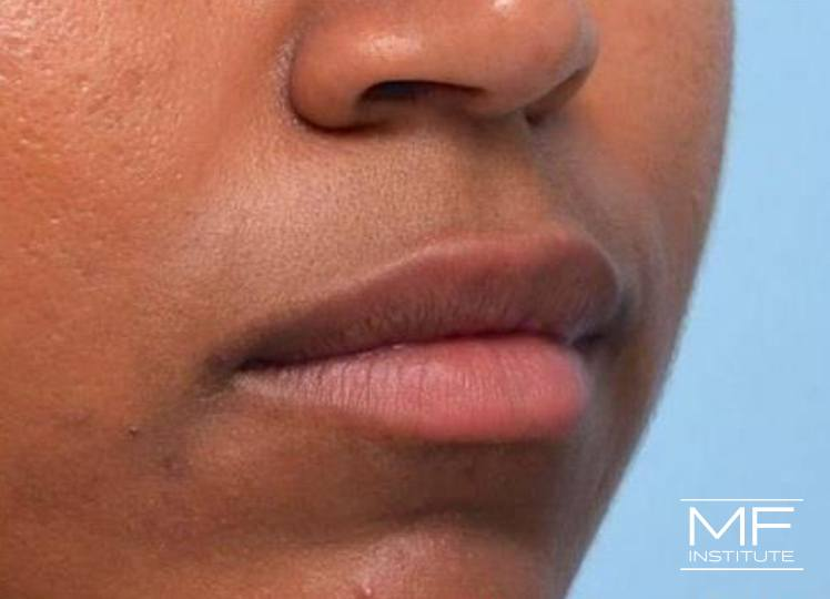 Lip Contouring - Wrinkles - After