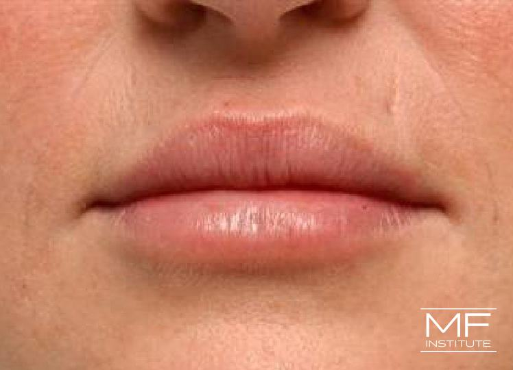 Lip Contouring - Asymmetry - After