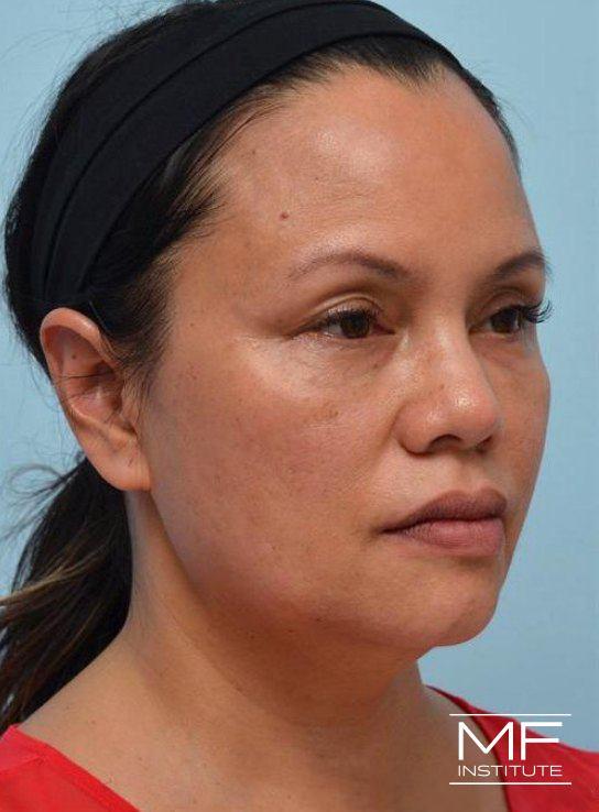 Lower Face Rejuvenation Problem Area - Fading Jawline - After