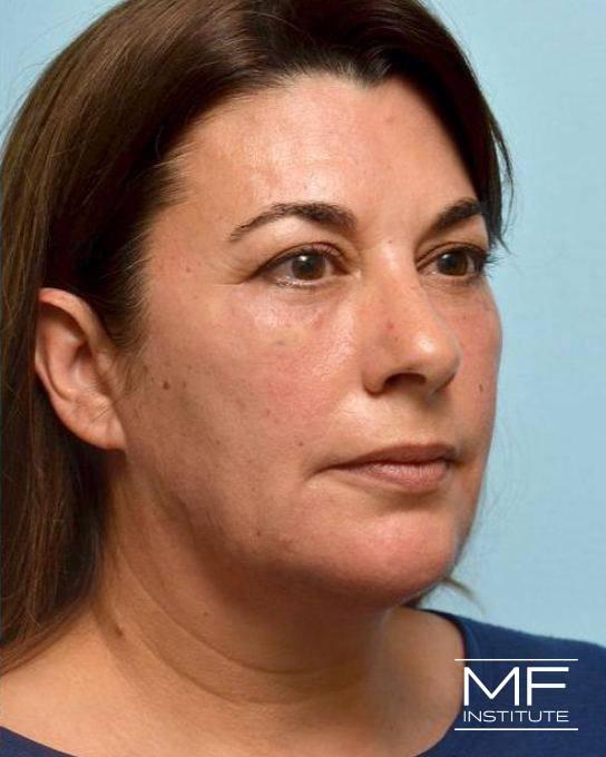 Lower Face Rejuvenation Problem Area - Jowls - After