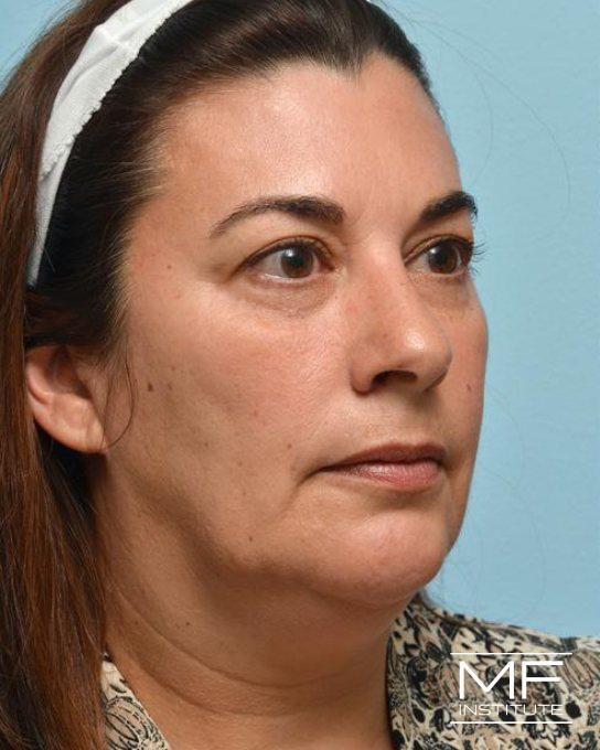 Lower Face Rejuvenation Problem Area - Jowls - Before