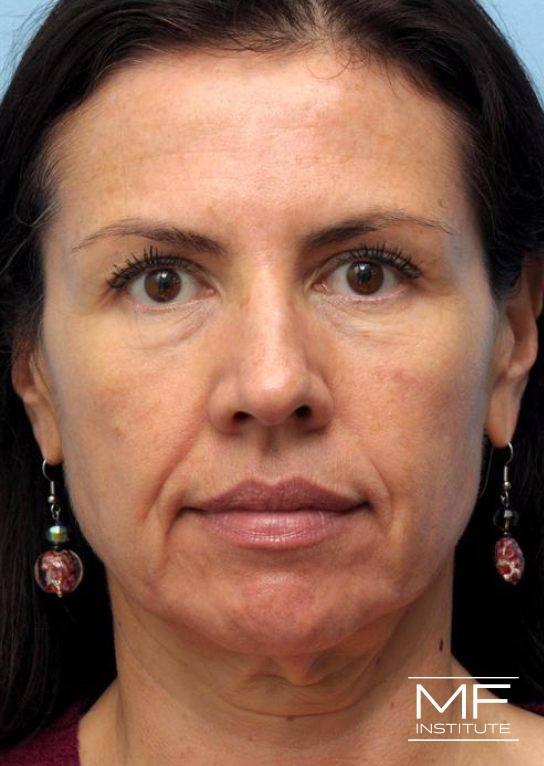 Lower Face Rejuvenation Problem Area - Marionette Lines - Before