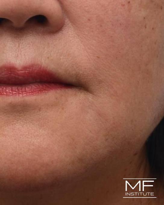 Lower Face Rejuvenation Problem Area - Marionette Lines - After