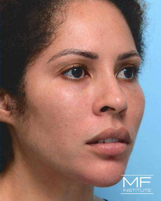 Lower Face Rejuvenation Problem Area - Undefined Chin - After