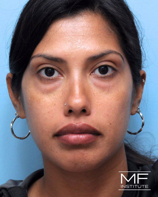 Before under-eye treatment with dermal fillers.