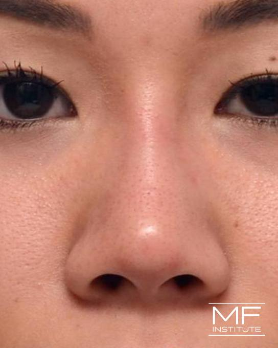 Nonsurgical Rhinoplasty - Augmenting the Bridge - After