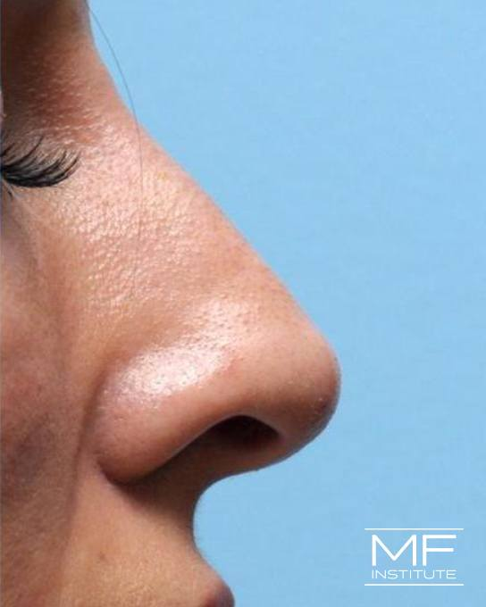 Nonsurgical Rhinoplasty - Reducing a Bump on the Bridge - After