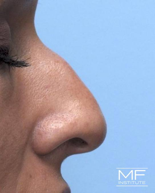 Nonsurgical Rhinoplasty - Reducing a Bump on the Bridge - Before