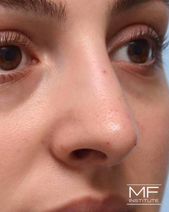 Nonsurgical Rhinoplasty - Correcting Deviations, Fractures & Concavities - After