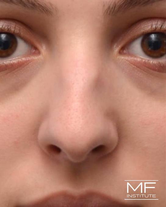 Nonsurgical Rhinoplasty - Correcting Deviations, Fractures & Concavities - Before