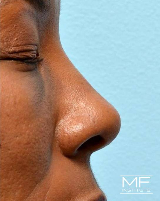 Nonsurgical Rhinoplasty - Defining the Nasal Tip - After