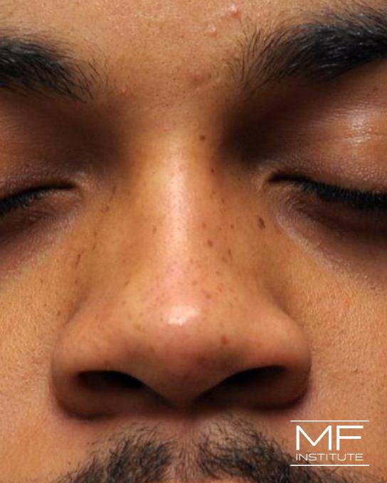 Nonsurgical Rhinoplasty - Narrowing the Bridge - After