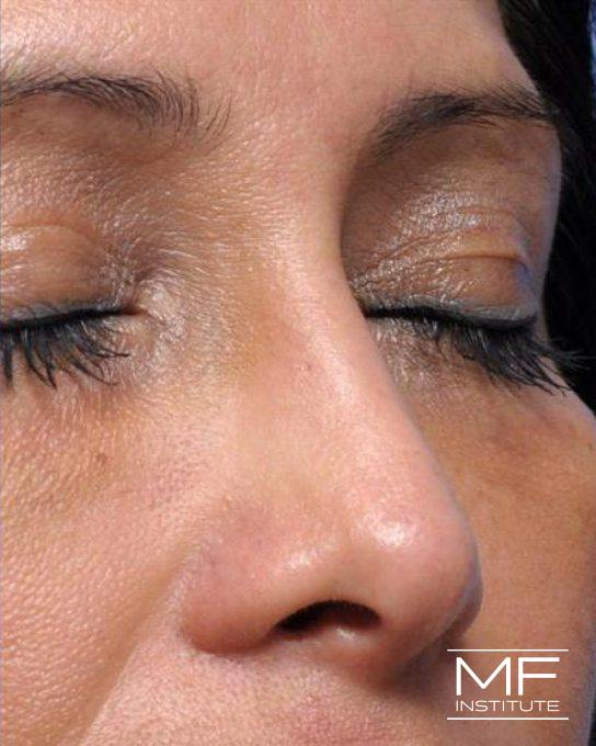 Nonsurgical Rhinoplasty - Post Surgical - After