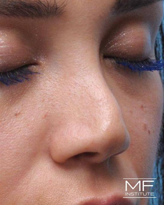 Nonsurgical Rhinoplasty - Post Surgical - Before