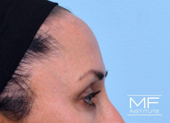 Upper Face Contouring - Forehead Contour Enhancer - After