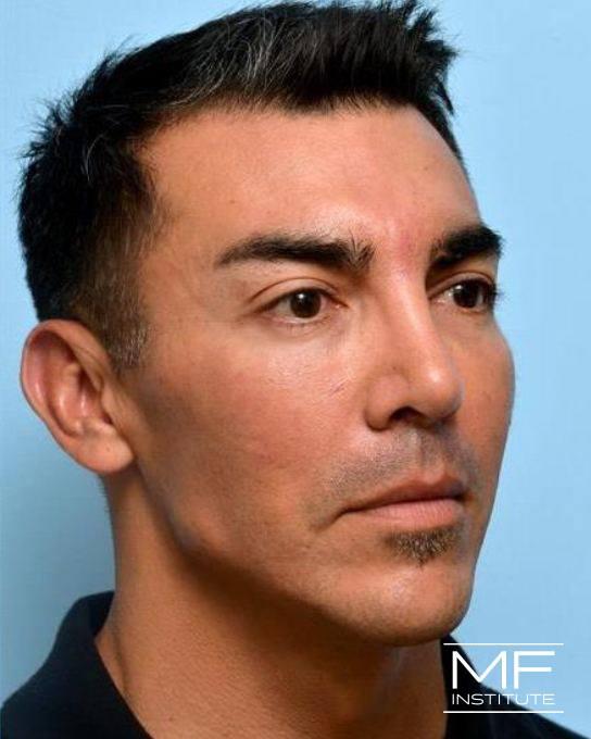 Upper Face Rejuvenation Problem Area - Frowning Wrinkles - After
