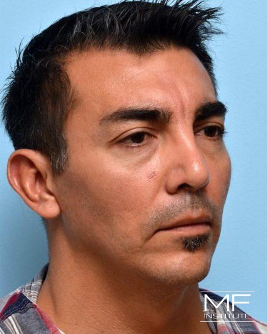 Upper Face Rejuvenation Problem Area - Frowning Wrinkles - Before