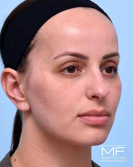 Upper Face Rejuvenation Problem Area - Low Eyebrows - After