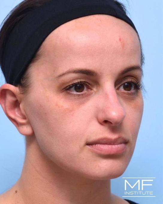 Upper Face Rejuvenation Problem Area - Low Eyebrows - Before