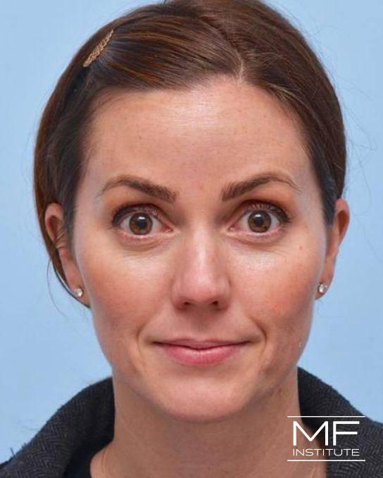 Upper Face Rejuvenation Problem Area - Forehead Wrinkles - After