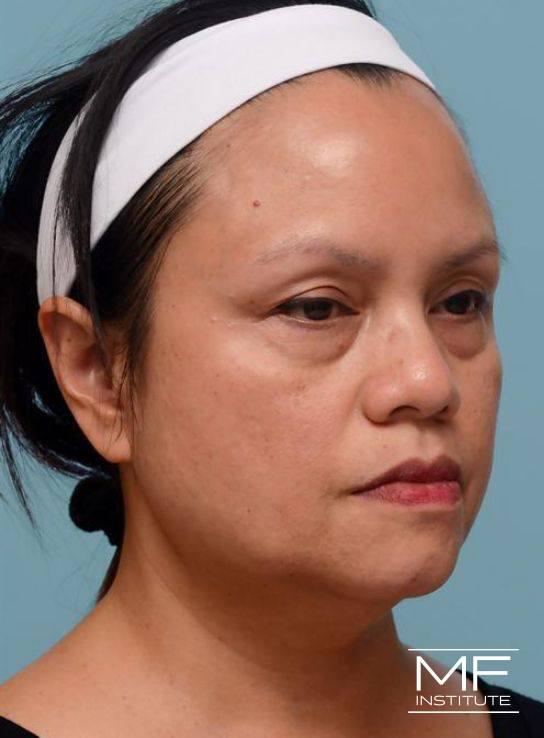 Lower Face Rejuvenation Problem Area - Fading Jawline - Before