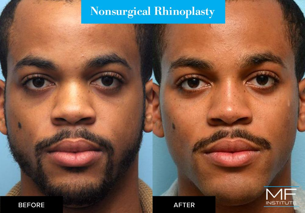 Nonsurgical rhinoplasty before and after case from Mabrie Facial Institute in San Francisco (case #300)