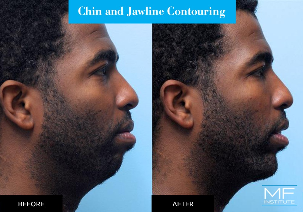 Nonsurgical chin and jawline contouring before and after case from Mabrie Facial Institute in San Francisco (case #302)