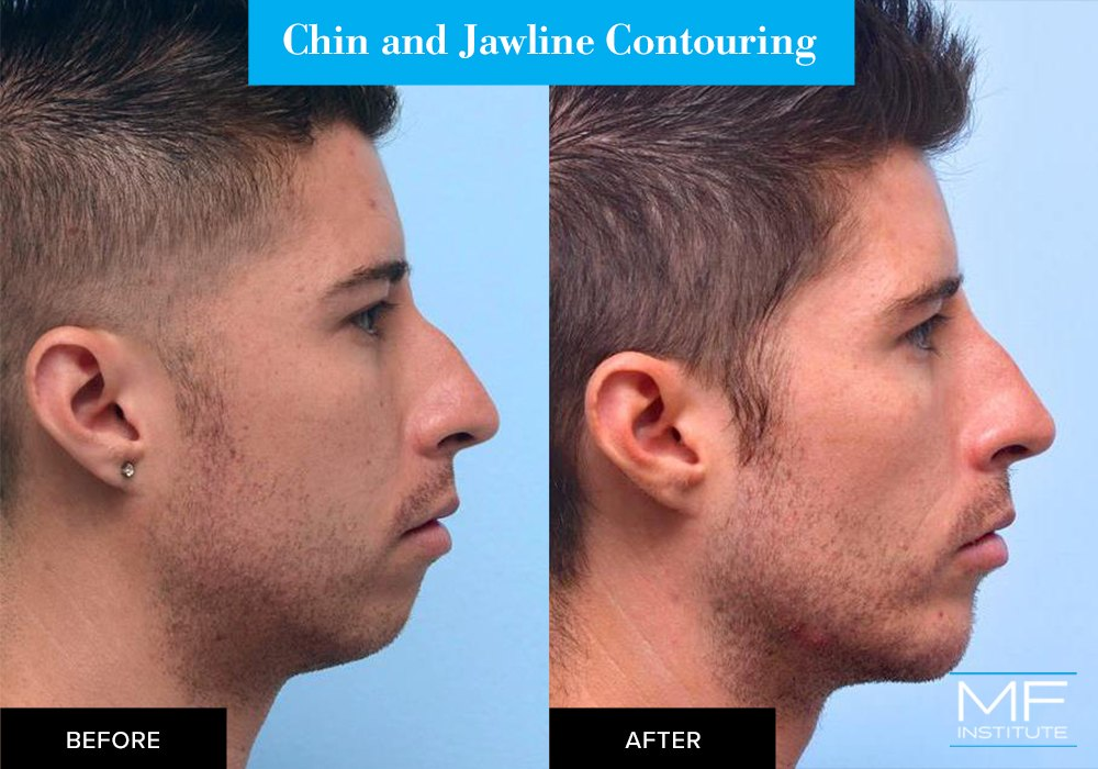 Nonsurgical chin and jawline contouring before and after case from Mabrie Facial Institute in San Francisco (case #496)