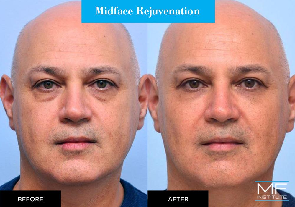 Midface rejuvenation, before and after case from Mabrie Facial Institute in San Francisco (case #520)