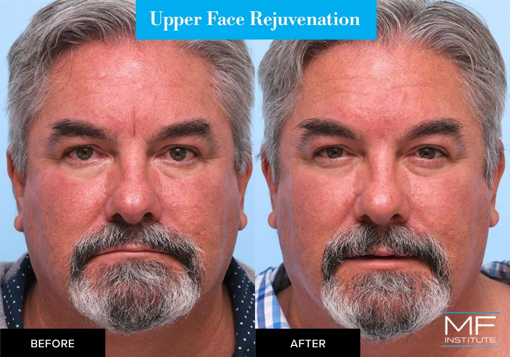 Nonsurgical upper face rejuvenation before and after case from Mabrie Facial Institute in San Francisco (case #655)