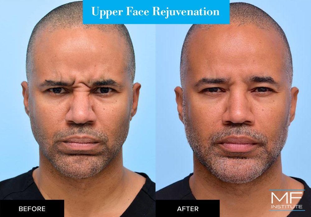 Nonsurgical upper face rejuvenation before and after case from Mabrie Facial Institute in San Francisco (case #657)