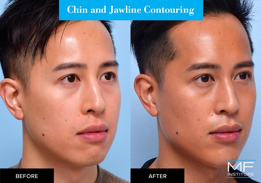 Nonsurgical chin and jawline contouring before and after case from Mabrie Facial Institute in San Francisco (case #659)