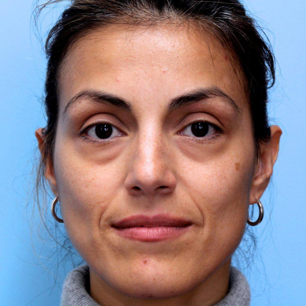 Patient prior to any dermal fillers