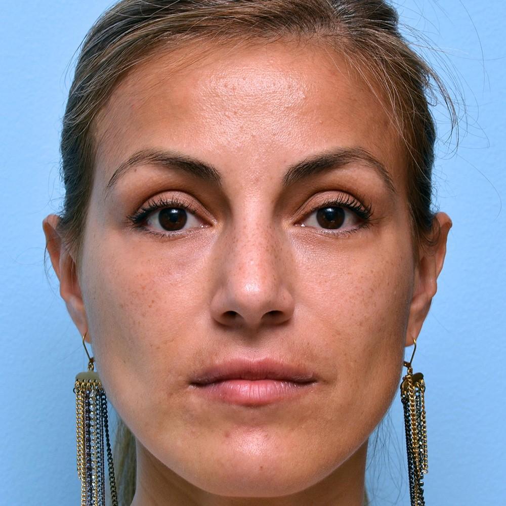 Patient after her third filler treatment